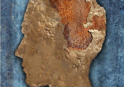 Encefalopatía espongiforme o enfermedad de las vacas locas