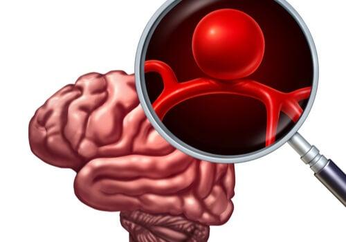 Cerebro con aneurisma cerebral