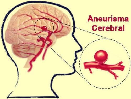 Aneurisma cerebral: definición, síntomas y tratamientos