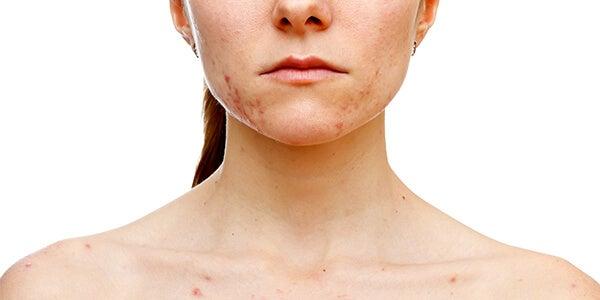 acné ocasionado al síndrome del ovario poliquístico