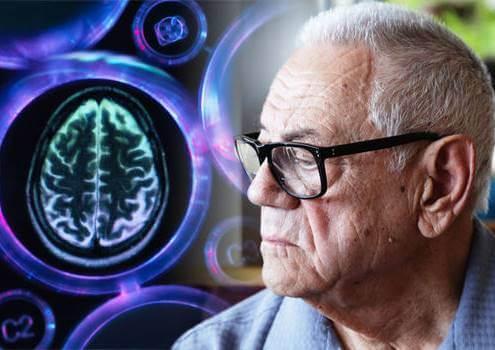 hombre con demencia vascular
