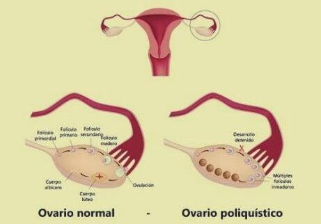 Vivir con síndrome del ovario poliquístico (SOP): ¿cómo es?