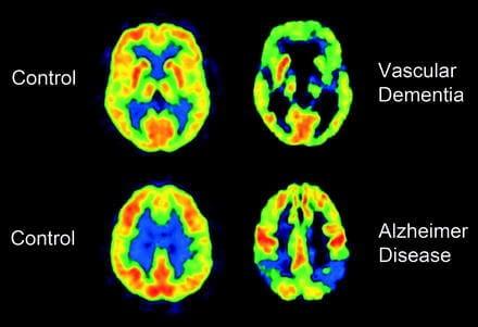 radiografía de la demencia vascular