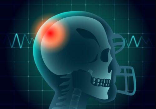 Cabeza de una persona con una zona en color rojo