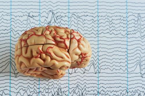 Cerebro con ondas cerebrales