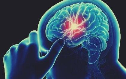 Déficit de vitamina B12 y deterioro cognitivo ¿qué relación hay?