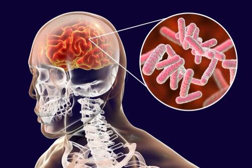 Infecciones cerebrales, clasificación y síntomas