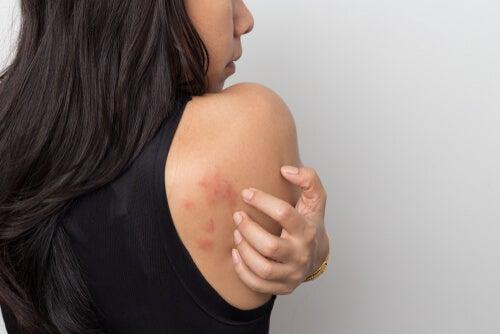 Mujer con urticaria en la espalda