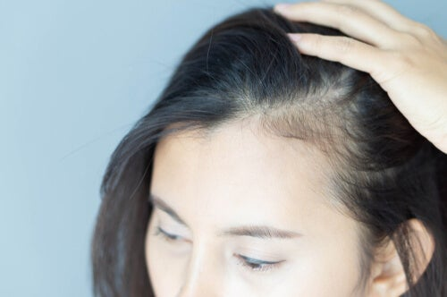 Implicaciones psicológicas de la alopecia en mujeres