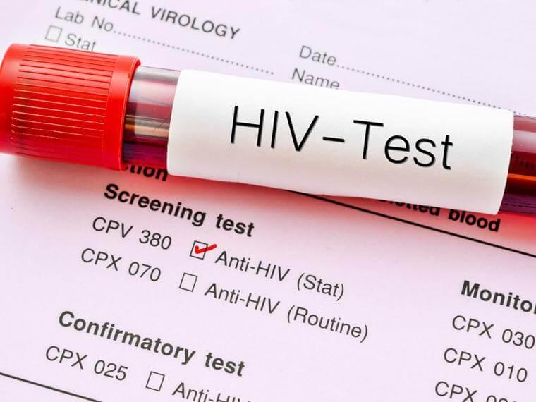 tubo de sangre representando el día mundial del VIH