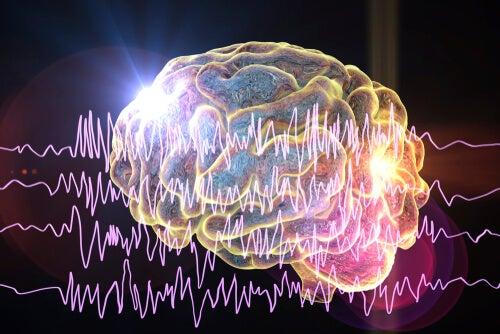 Cerebro con crisis epilépticas