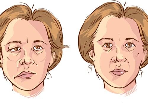 Parálisis facial en una mujer