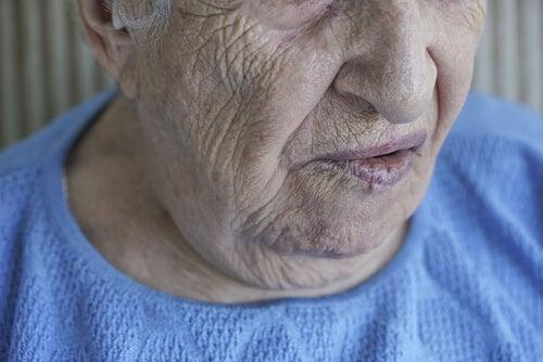 Parálisis facial: cuando el rostro no responde