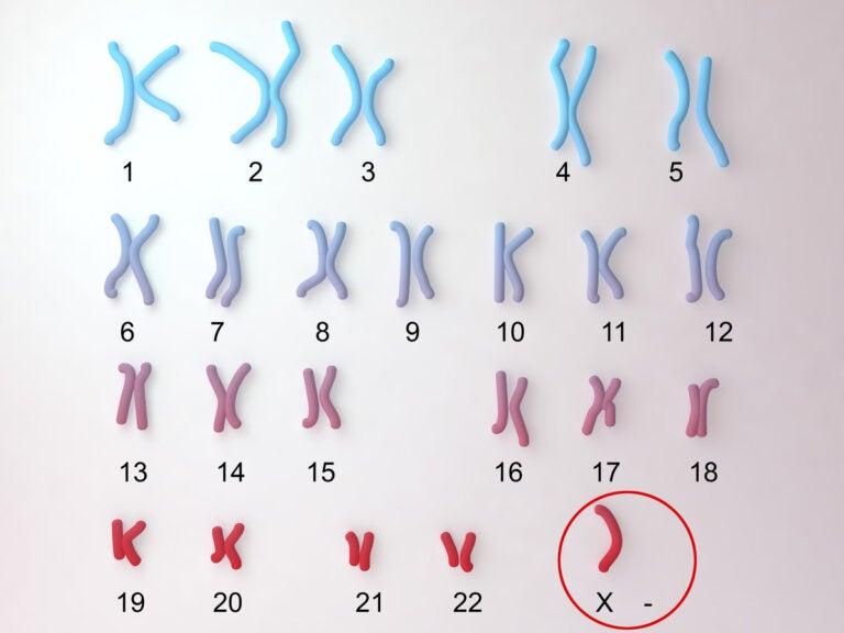 Síndrome de Turner, la monosomía X