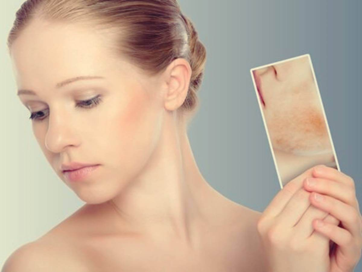 Manchas por estrés: cuando la piel reacciona a las emociones