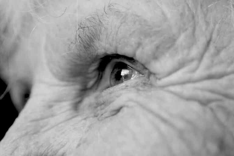 Síndrome de Anton: el ciego que dice ver