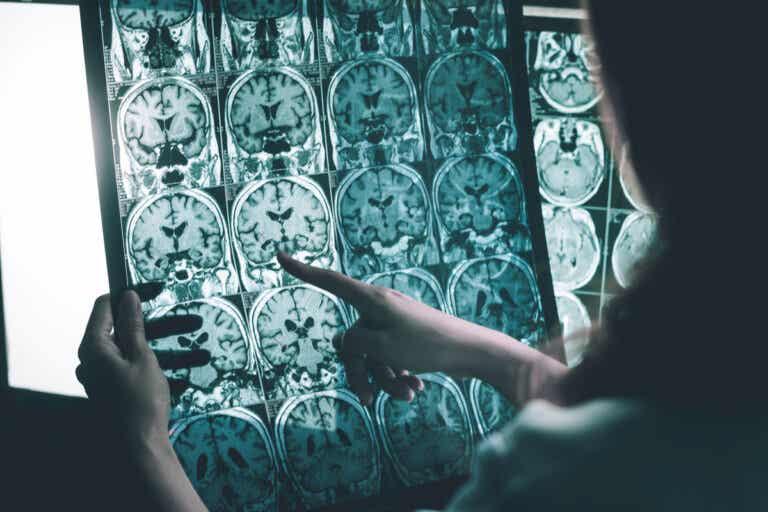 Ondas gamma contra la enfermedad de Alzheimer