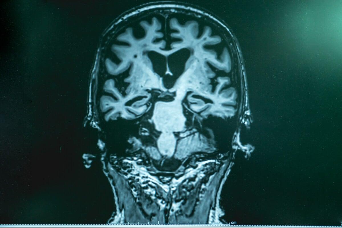Cerebro de una persona con alzheimer por resonancia magnética