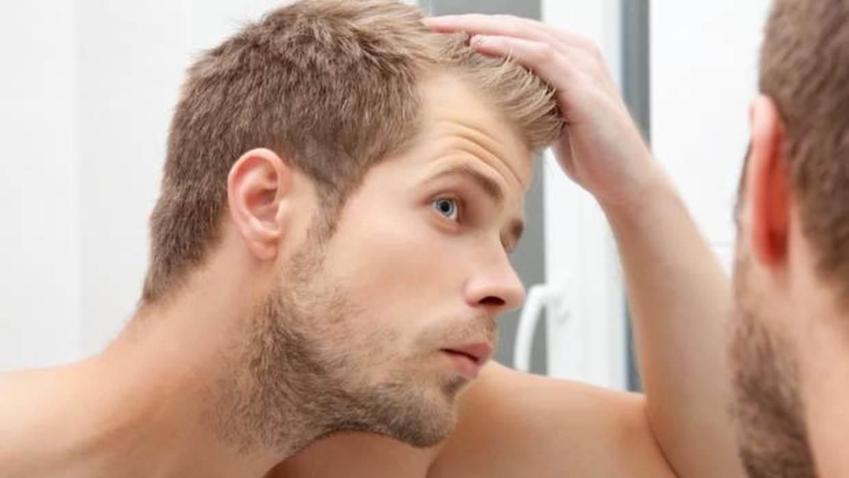 Chico rubio que sufre perdida de cabello por ansiedad