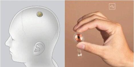Neuralink: el chip que conectará el cerebro a un ordenador