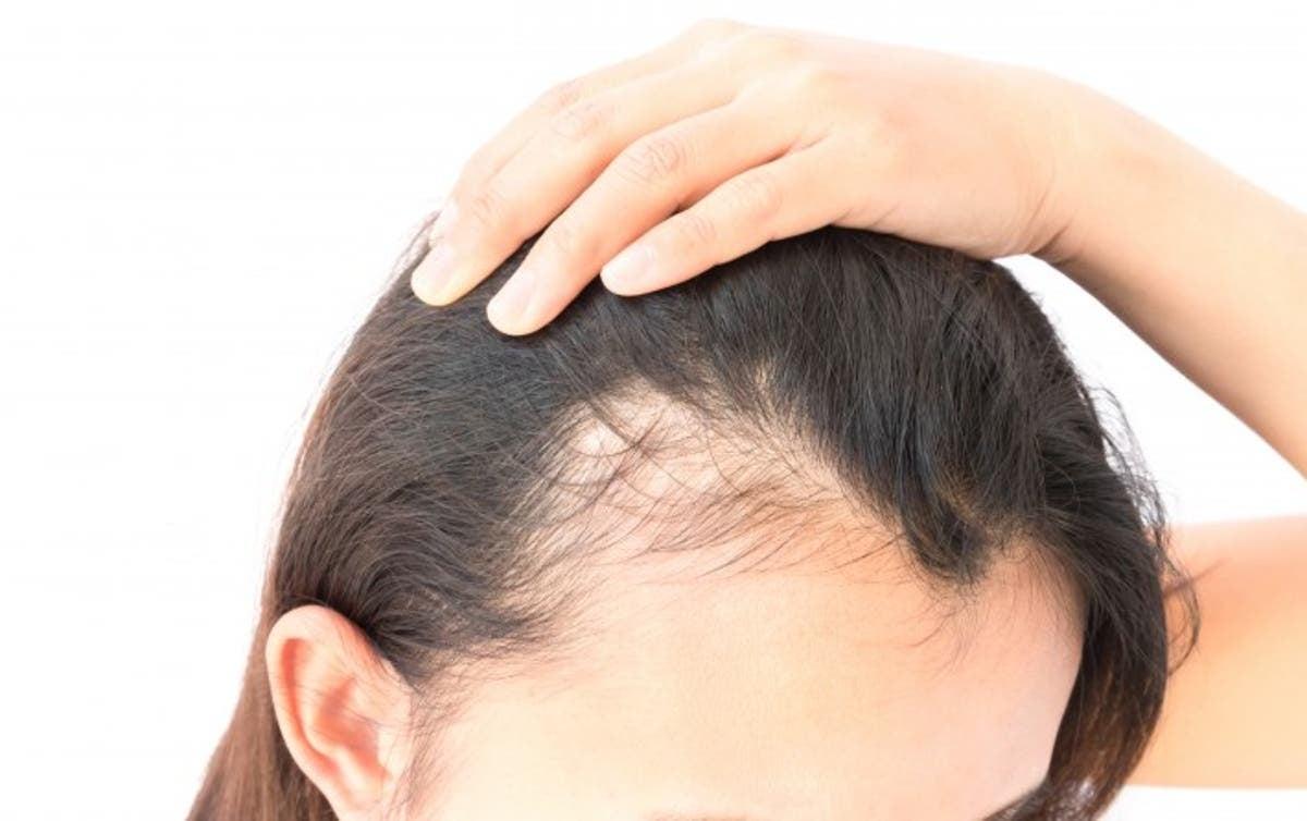 Chica que sufre pérdida de cabello por ansiedad
