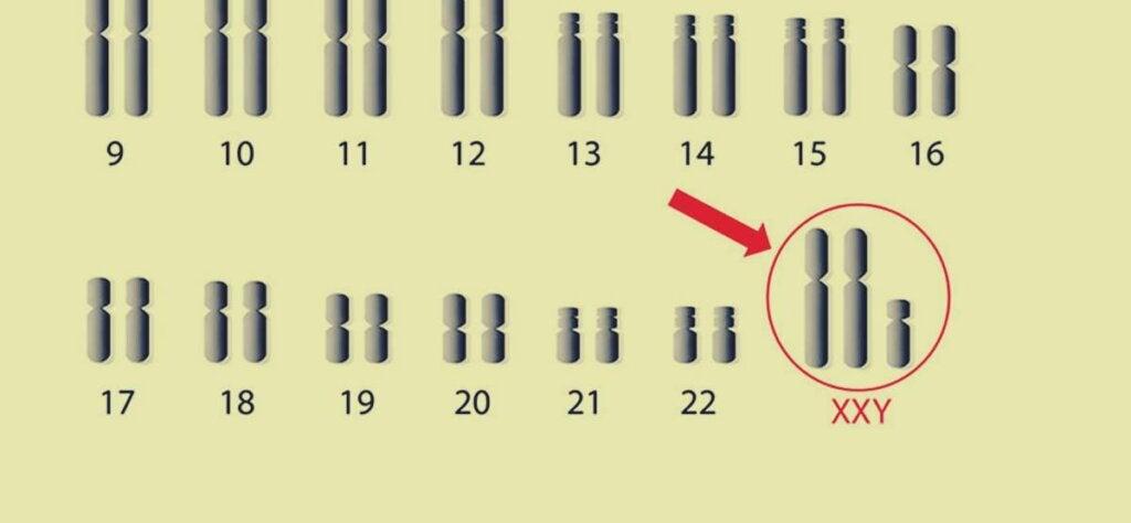 Cromosomas representando el l síndrome de Klinefelfer