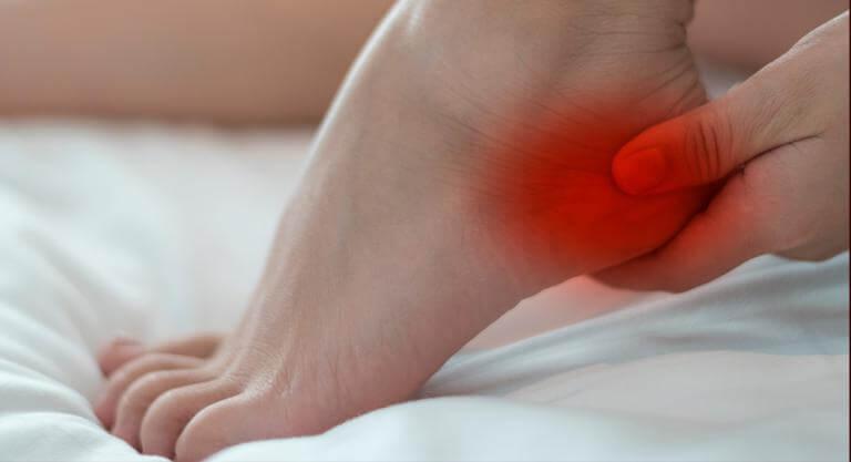 Talón enrojecido debido al síndrome de los pies ardientes