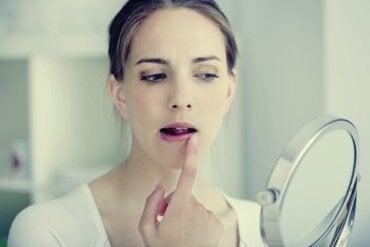 Herpes por estrés: emociones que se transforman en ampollas