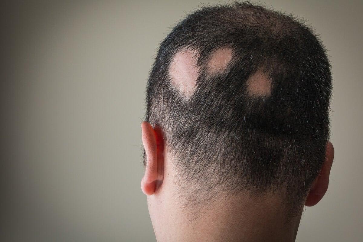Hombre con alopecia nerviosa