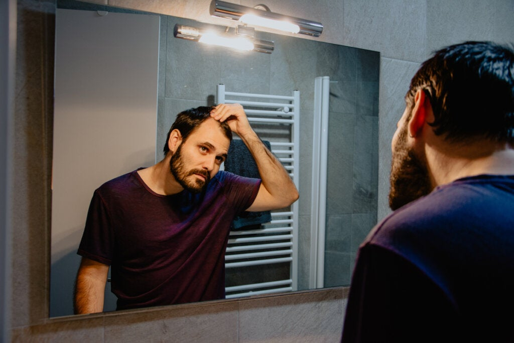 Falacrofobia o miedo a la calvicie: síntomas, causas y tratamientos