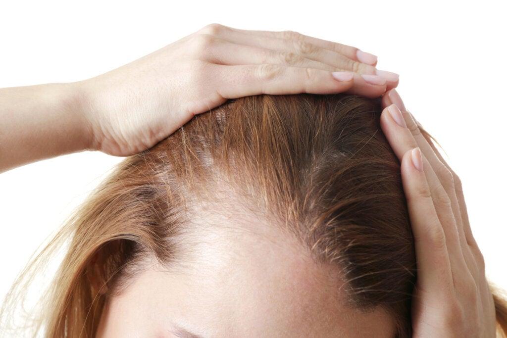 Alopecia nerviosa: síntomas, causas y tratamientos