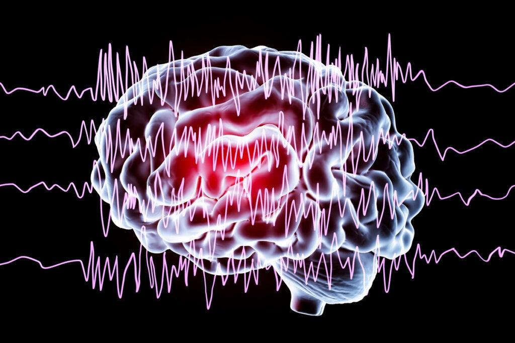 Crisis epiléptica: características, tipos y cómo actuar