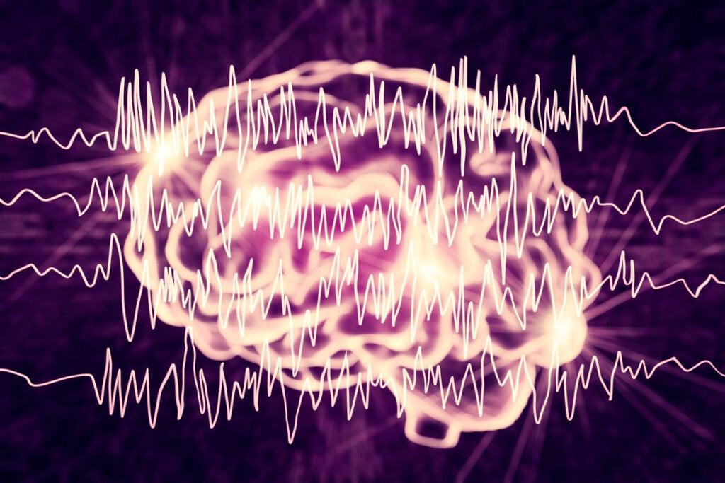 Cerebro con ondas de crisis epilépticas