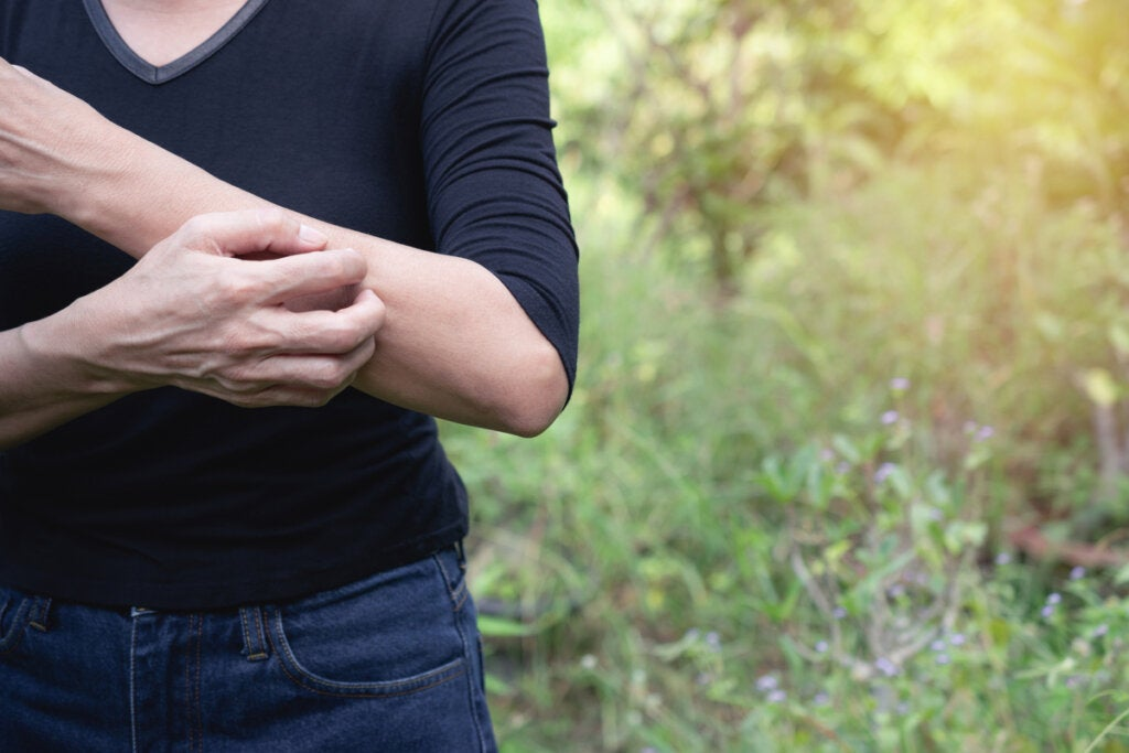 ¿Qué es el síndrome de Ekbom?