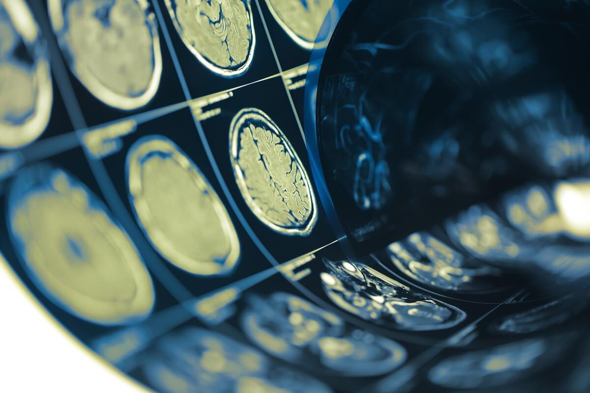 Pruebas de un cerebro para ver relación entre las lesiones cerebrales y el crimen
