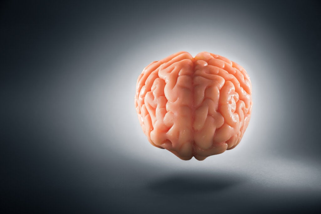 imagen representando que el cerebro tiene dos hemisferios