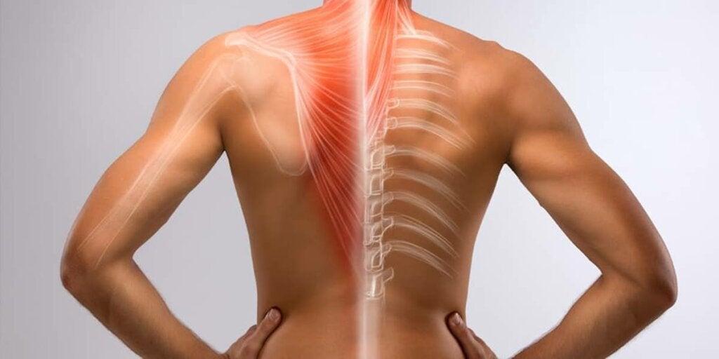 figura representando el dolor de espalda por ansiedad