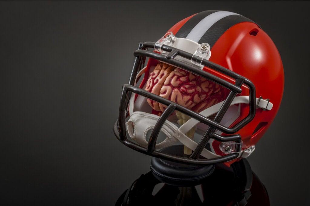 Encefalopatía traumática crónica y su relación con la NFL
