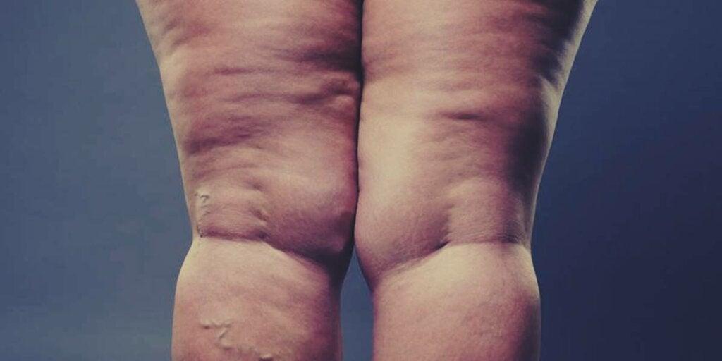 piernas de mujer con lipidema