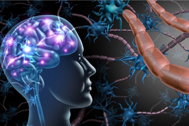 Diferencias entre esclerosis múltiple y ELA
